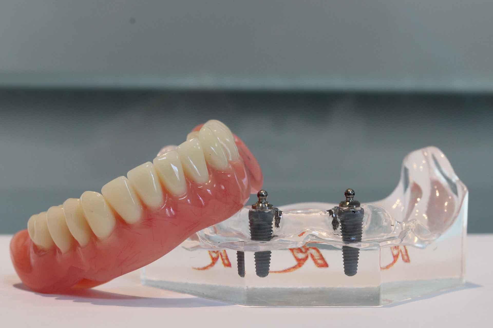 Prothetische Tandheelkunde