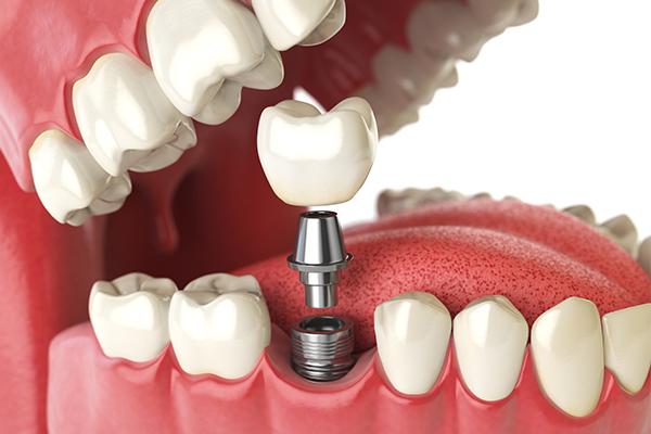 Een mooi voorbeeld van een implantaat geplaatst door Thomas